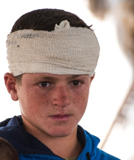 06/10/15 A Seefer. Osama (13) wounded in the head by settlers throwing stones at 12:30 a.m. while he was sleeping. 4 stiches. Photo: EAPPI/BG. Saltnes