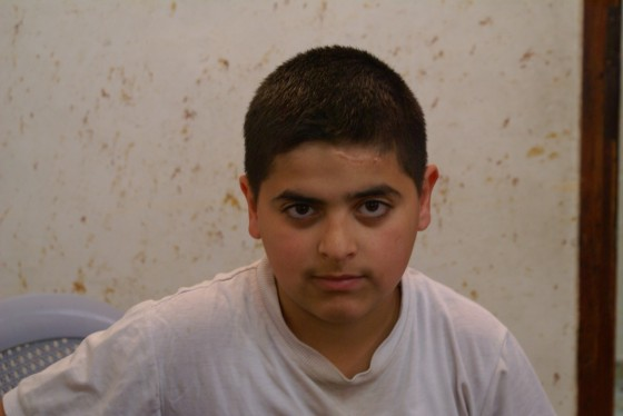 Photo 4: Omar's younger brother, with an injury from a rubber-coated steel bullet